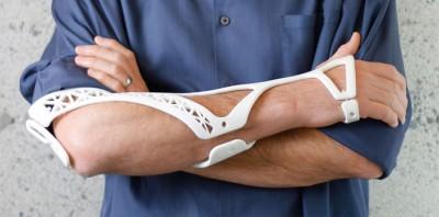 3D baskılı alçı ile sakatlıkların iyileşmesi daha kolay