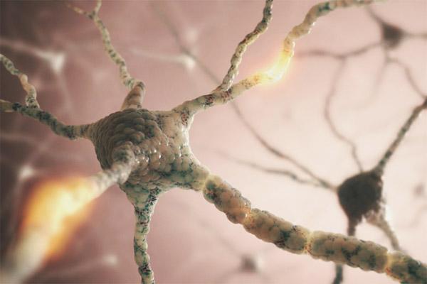 Alzheimer'ın nedenlerinden biri genç beyinlerde bulundu