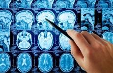 beynin-ogrenme-kabiliyeti