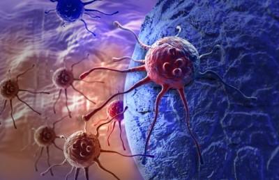 Tümörlerdeki karmaşık protein yapılarının gözlemlenmesinde yeni yaklaşım