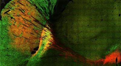 Beyinde hareket fonksiyonlarını kontrol eden bölgede yeni bulgular