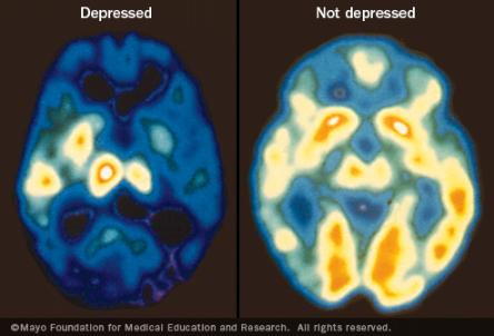 Beynin intiharı: İntihar edenin beyninde neler oluyor?