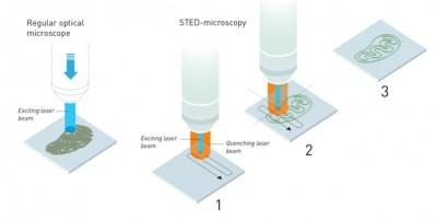 Süper çözünürlüklü ışık mikroskopisi Kimya Nobel ödülü kazandı