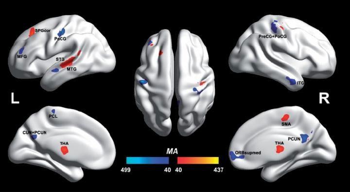 Otizmli ve otizmli olmayan bireylerin beyinleri ilk kez ayrıştırıldı