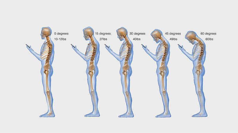 Aşırı telefon kullanımı boyna nasıl zarar veriyor?